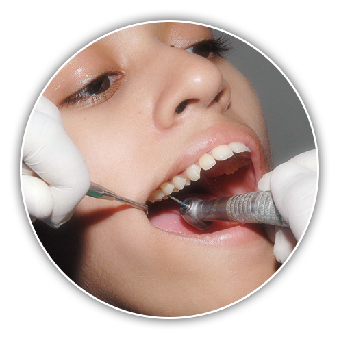 Treatment of Decay at Stoma Advanced Dental Care